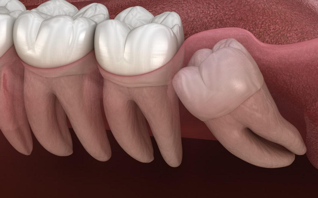 """""""Will my wisdom teeth make my teeth crooked?"""""""